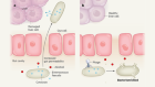 Microbial clues to a liver disease