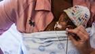Nestling skin-to-skin right after birth saves fragile babies' lives