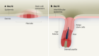 A 4D road map for the formation of hair follicles