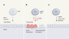 A stem-cell basis for skeletal ageing