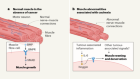 Tumours block protective muscle and nerve signals to cause cachexia