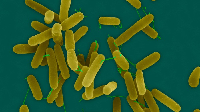 Pseudomonas aeruginosa is one of the clinically relevant pathogens that the new compound may help to fight.